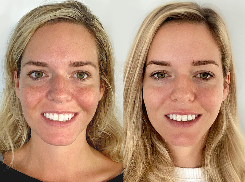 Renue Trial Participant's Results - Before and after Renue Serum