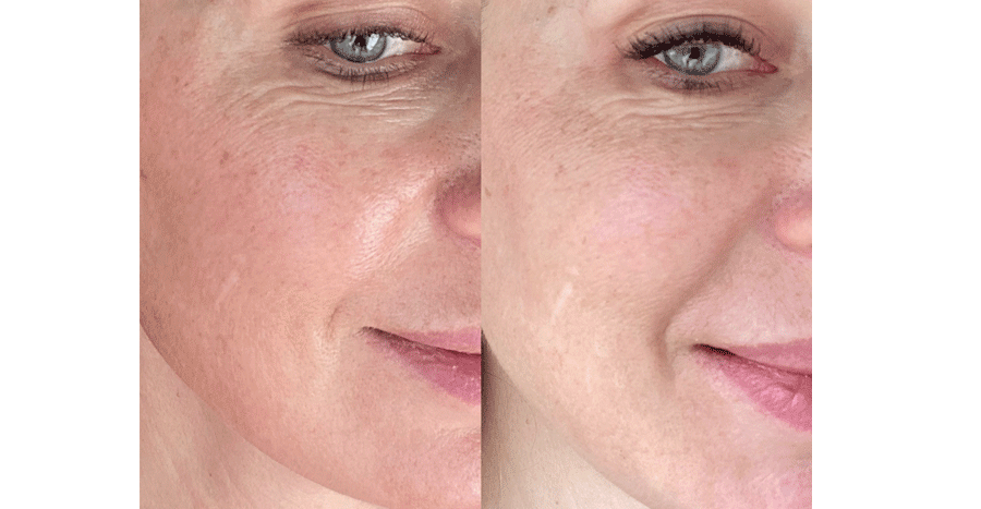 NAD+ Skincare Results